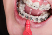 Cleaning a mouth with a dental brace — 图库照片