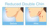 Reduce a double chin — Stock Vector