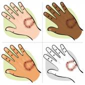 Illustration is part of the human body ethnicities hand with an animal bite. Ideal for first aid, medical and institutional materials — Stock Vector