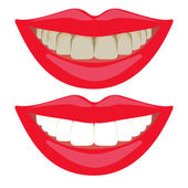 Whitening teeth results. Before and after dental bleaching — Stock Vector