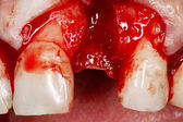 Real dental implant surgery — Stock fotografie