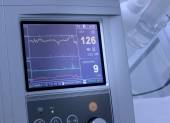 Cardiograph fixing and printing graphs of heart rate — Stock Photo
