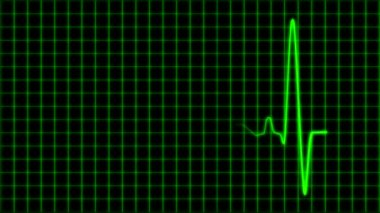 Cardiogram cardiograph oscilloscope screen with grid green loop — Stock Video