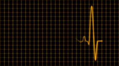 Cardiogram cardiograph oscilloscope screen with grid orange yellow loop — Stock Video