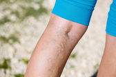 Varicose veins — Stock Photo