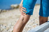 Painful varicose veins — Stock Photo