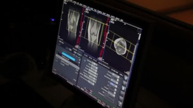 CAT Scan Monitor Room. Research on magnetic resonance imaging in the medical clinic. MRI scan — Stock Video