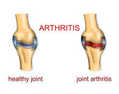 JOINT ARTHRITIS — Stock Vector