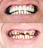 Zahnärztliche Sanierung