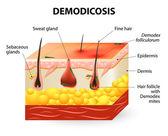 Demodicosis. Demodex atka