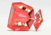 Zubní protézy izolovaných na bílém