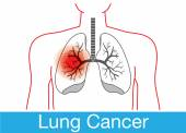 Discoloration on lung because cancer cell happen at lung from smoking This illustration is medical and health care concept