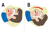 First Aid resuscitation (CPR) clearing breathing positioning For resuscitation Ideal for training materials catalogs and institutional