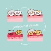 Vysocí zub s parodontem