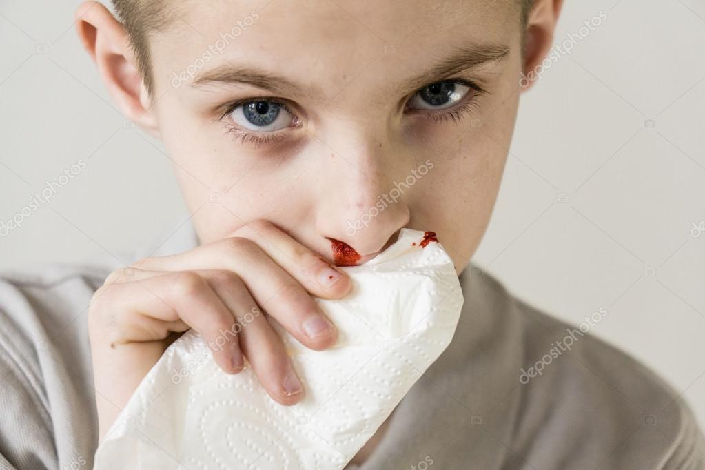 how to stop a nosebleed fast in a child