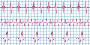 Seamless pattern of the ekg cardiograms chart stock vector