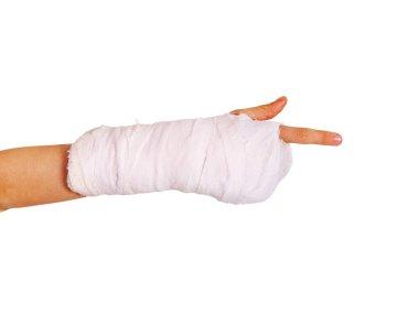 Broken child hand
