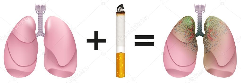 """Résultat de recherche d'images pour """"tabac poumons"""""""