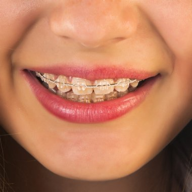 Girl with dental braces