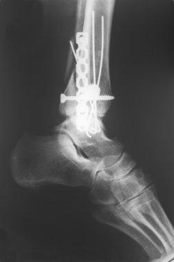 X-ray of the broken leg