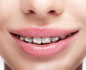 Closeup of woman open smiling mouth with  brackets