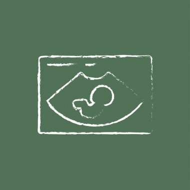 Fetal ultrasound icon drawn in chalk.