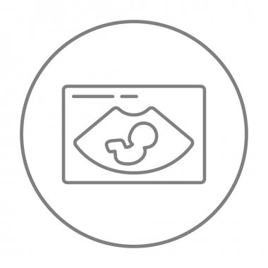 Fetal ultrasound line icon.