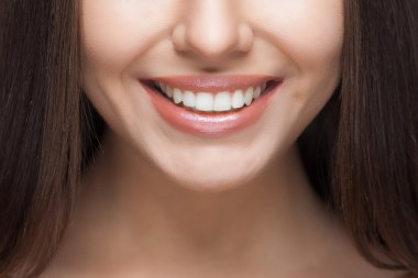 Woman smile. Teeth whitening. Dental care.
