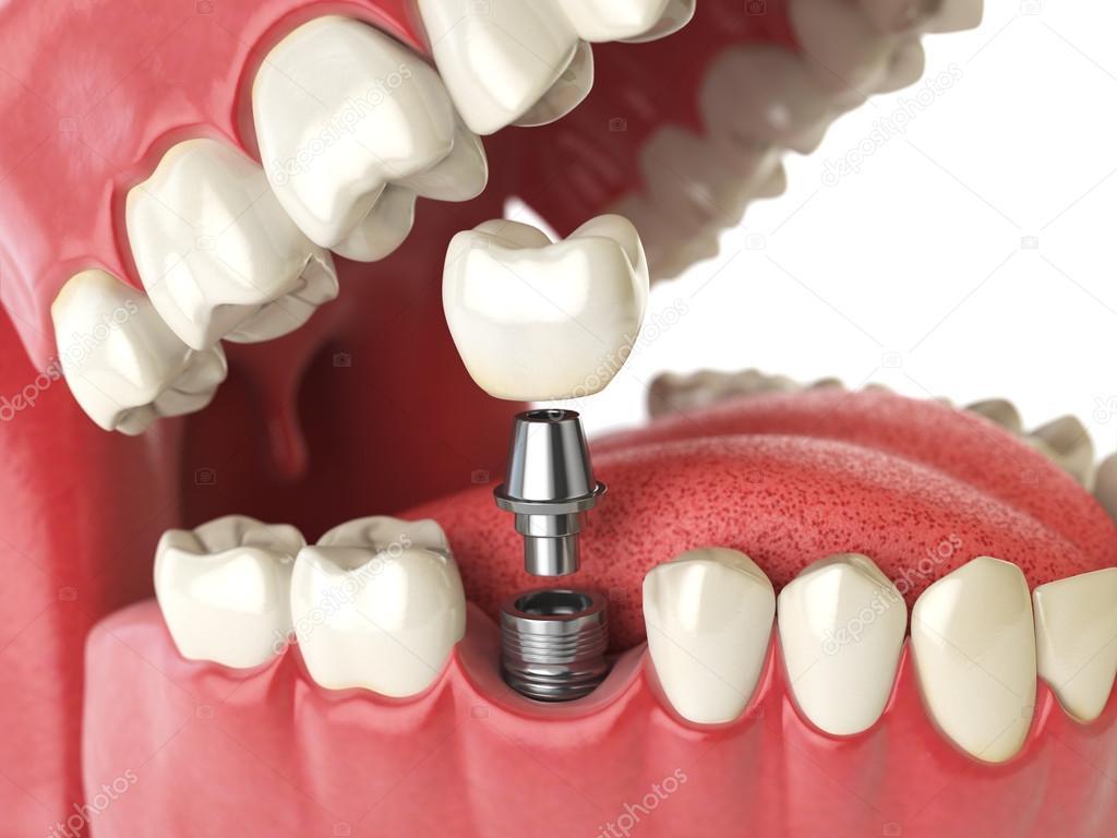 Diente implante humano. Concepto dental. Los dientes humanos o ...