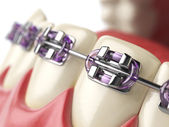 Zähne mit Zahnspangen oder Klammern im menschlichen Mund offen. Zahnpflege-c