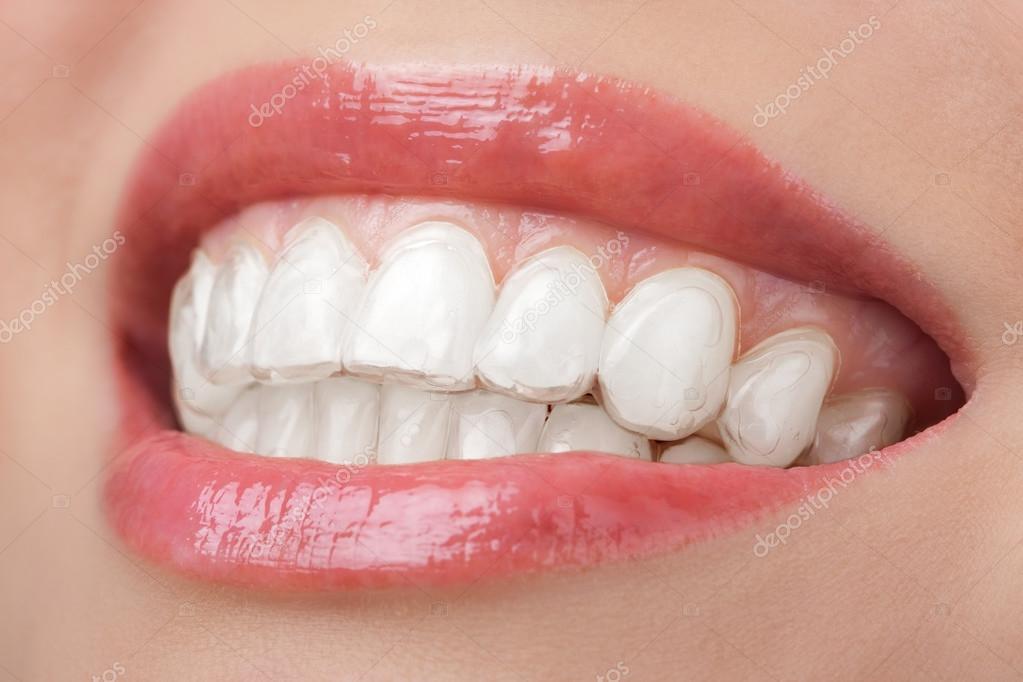 Dentes Com Moldeira Sorriam Dental Stock Photo C Duskbabe 114858106