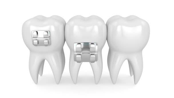 Zähne mit Zahnspangen