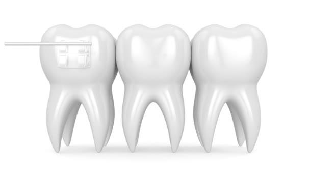Zähne mit drei Arten von kieferorthopädischen Zahnspangen