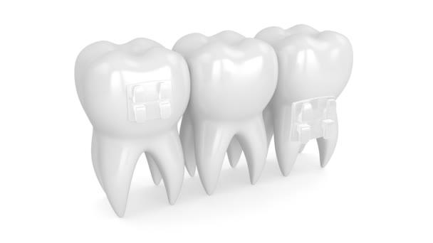 Zähne mit klarer kieferorthopädischer Zahnspange