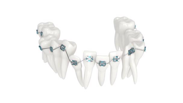 Zarovnání zubů podle ortodontické rovnátka izolované přes bílé pozadí