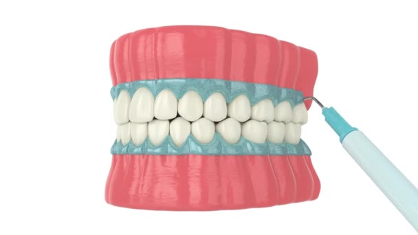 Professional teeth bleaching process over white background