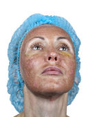 Cosmetology.Skin in the course of rejection after a deep chemical peeling. Boundary between the processed and healthy skin on a neck