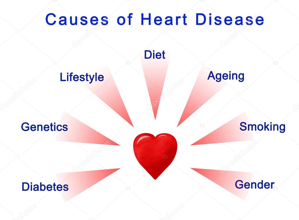 Diagram of causes of heart disease stock photo vaeenma 116869704 diagram of causes of heart disease photo by vaeenma ccuart Choice Image