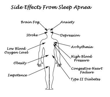 Sife Effects From Sleep Apnea