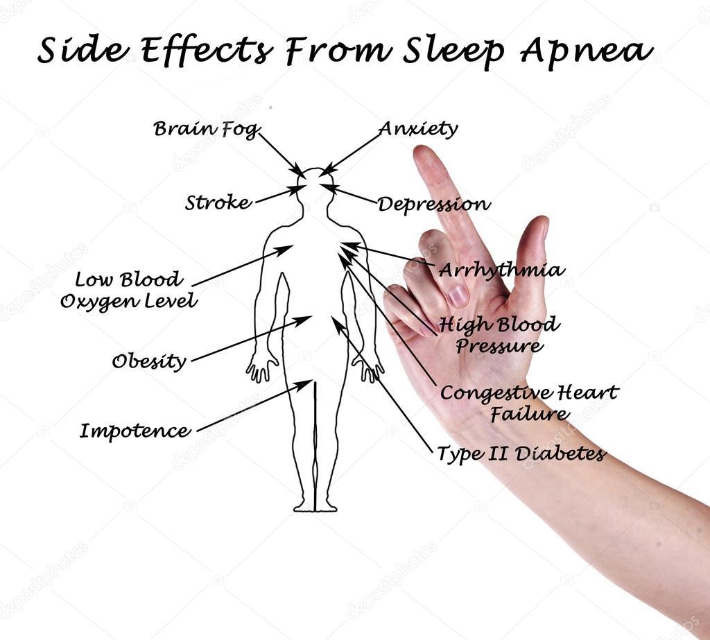 Watch How to Recognize Symptoms of Sleep Apnea video