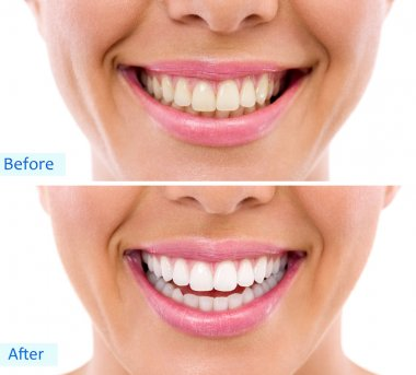 Whitening - bleaching treatment ,woman teeth and smile, before after