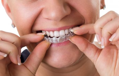 Transparent teeth braces
