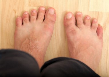 Foot disease, skin infections
