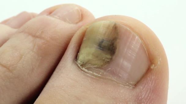 Essenza per cura di infezioni fungose di unghie