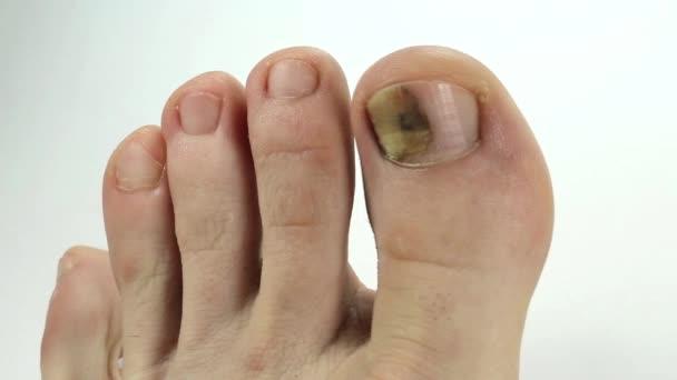 Se è possibile aumentare le unghie ferite da un fungo
