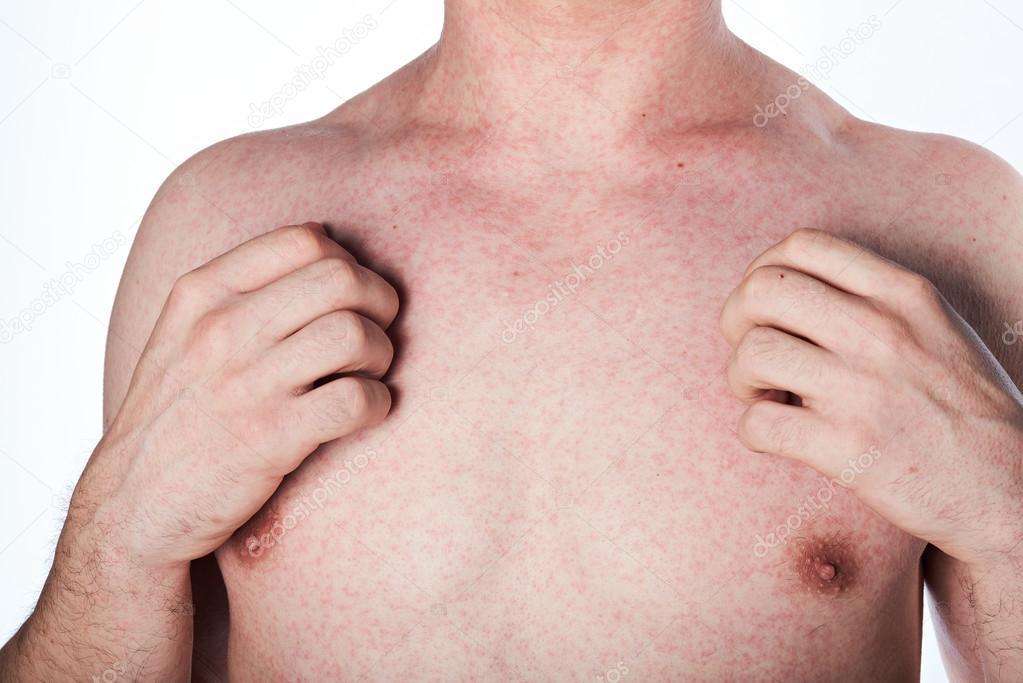klåda i bröstet