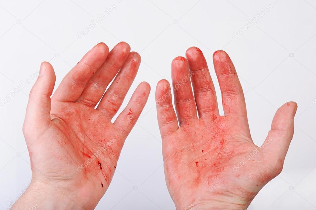 Resultado de imagem para mão com sangue