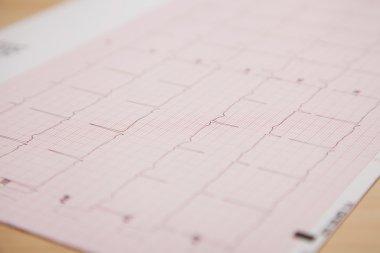Generic ficticious medical report and cardiogram stock vector