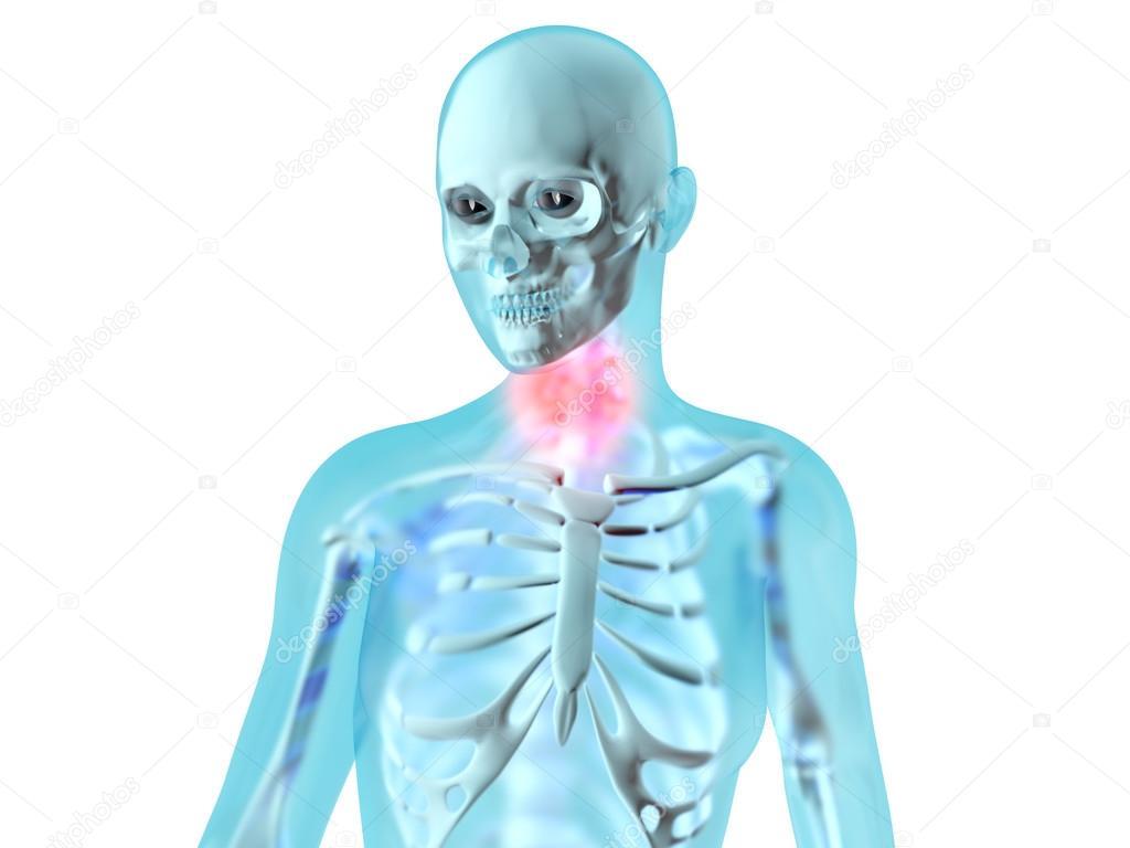 Anatomía femenina - dolor de garganta — Fotos de Stock © Spectral ...