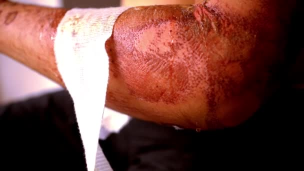 Detailní záběr vyčištění ran a odstranění obvazu použité. Extrémní makro video